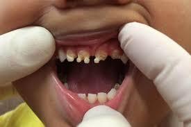 кока-кола вымывает кальций из костей и зубов